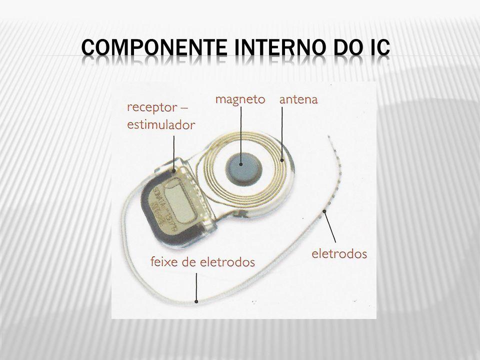 O sistema funciona da seguinte forma: o som é captado pelo microfone retroauricular e enviado ao processador de fala.