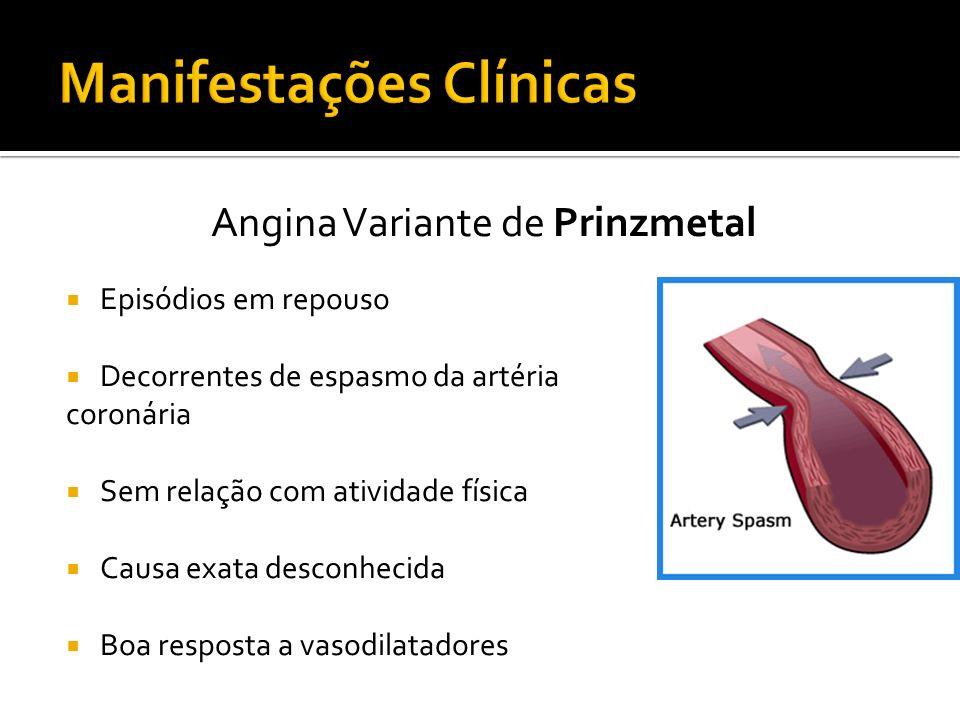 Angina Variante de Prinzmetal Episódios em repouso Decorrentes de espasmo da artéria coronária Sem relação com atividade física Causa exata desconheci