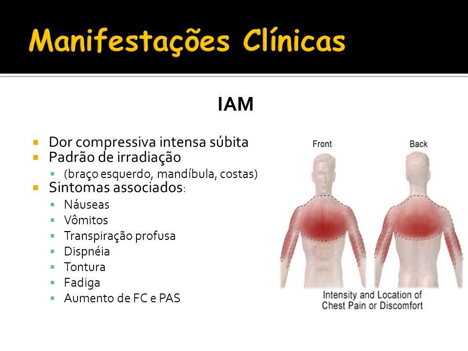 IAM Dor compressiva intensa súbita Padrão de irradiação (braço esquerdo, mandíbula, costas) Sintomas associados : Náuseas Vômitos Transpiração profusa