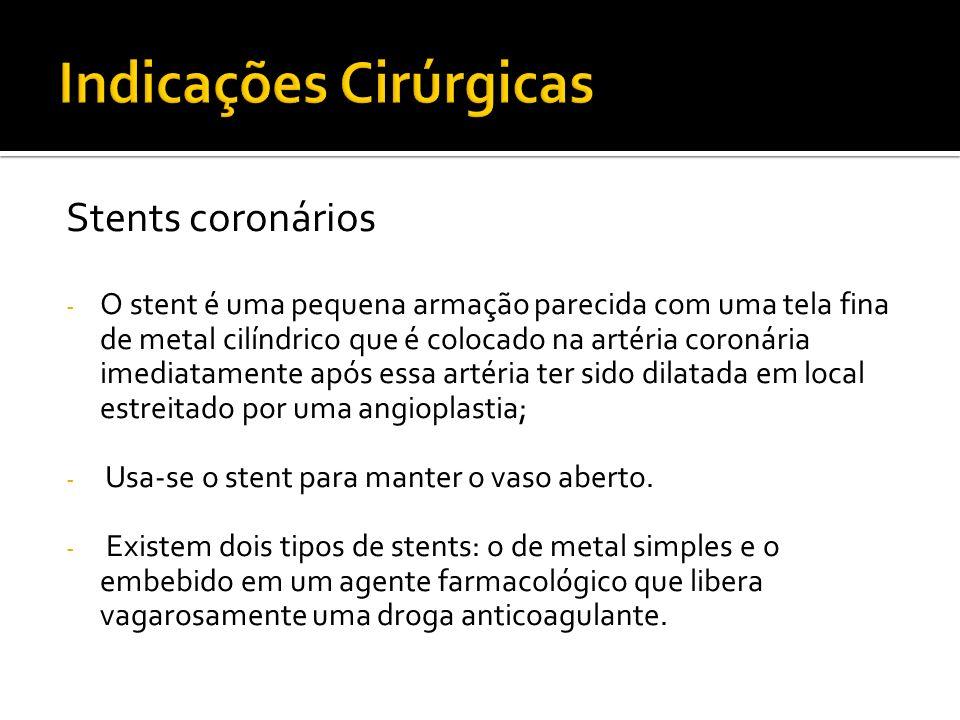 Stents coronários - O stent é uma pequena armação parecida com uma tela fina de metal cilíndrico que é colocado na artéria coronária imediatamente apó
