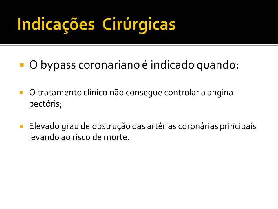 O bypass coronariano é indicado quando: O tratamento clínico não consegue controlar a angina pectóris; Elevado grau de obstrução das artérias coronári