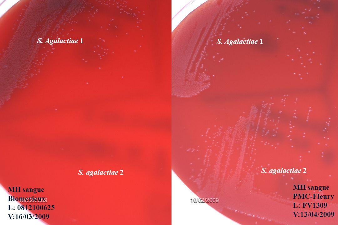 Emerson Danguy Cavassin S. Agalactiae 1 S. agalactiae 2 S. anginosus MH sangue Biomerieux L: 0812100625 V:16/03/2009 S. Agalactiae 1 S. agalactiae 2 M