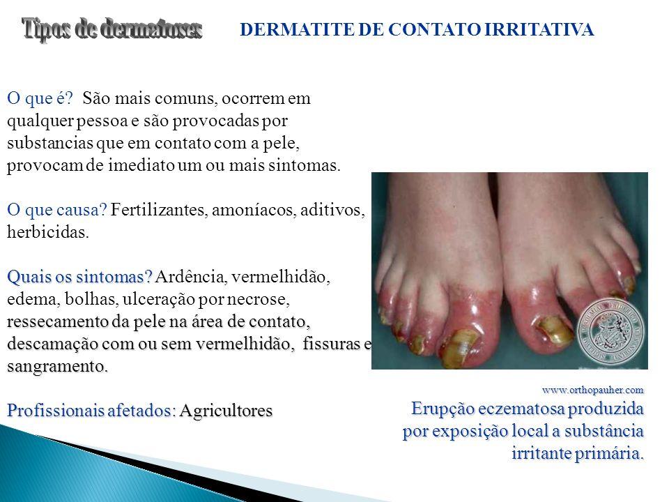 DERMATITE DE CONTATO IRRITATIVA O que é? São mais comuns, ocorrem em qualquer pessoa e são provocadas por substancias que em contato com a pele, provo