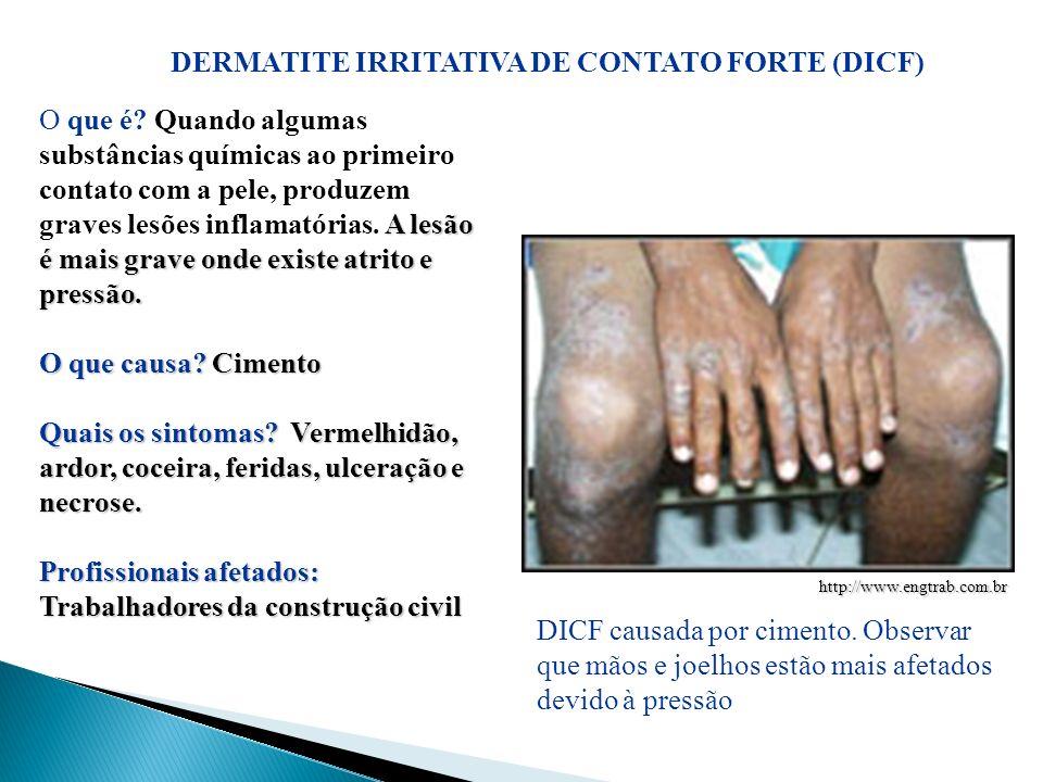 DERMATITE IRRITATIVA DE CONTATO FORTE (DICF) A lesão é mais grave onde existe atrito e pressão. O que é? Quando algumas substâncias químicas ao primei