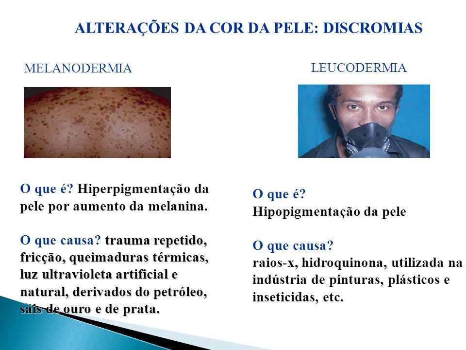 ALTERAÇÕES DA COR DA PELE: DISCROMIAS MELANODERMIA LEUCODERMIA O que é? Hiperpigmentação da pele por aumento da melanina. trauma repetido, fricção, qu