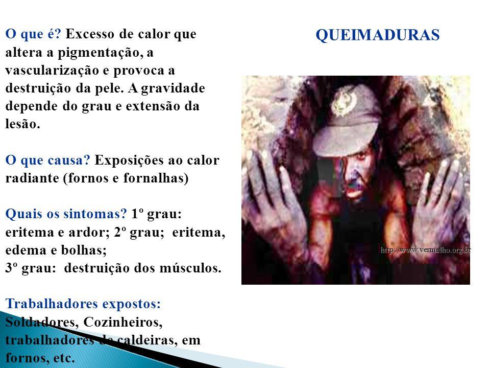 QUEIMADURAS http://www.vermelho.org.br O que é? Excesso de calor que altera a pigmentação, a vascularização e provoca a destruição da pele. A gravidad