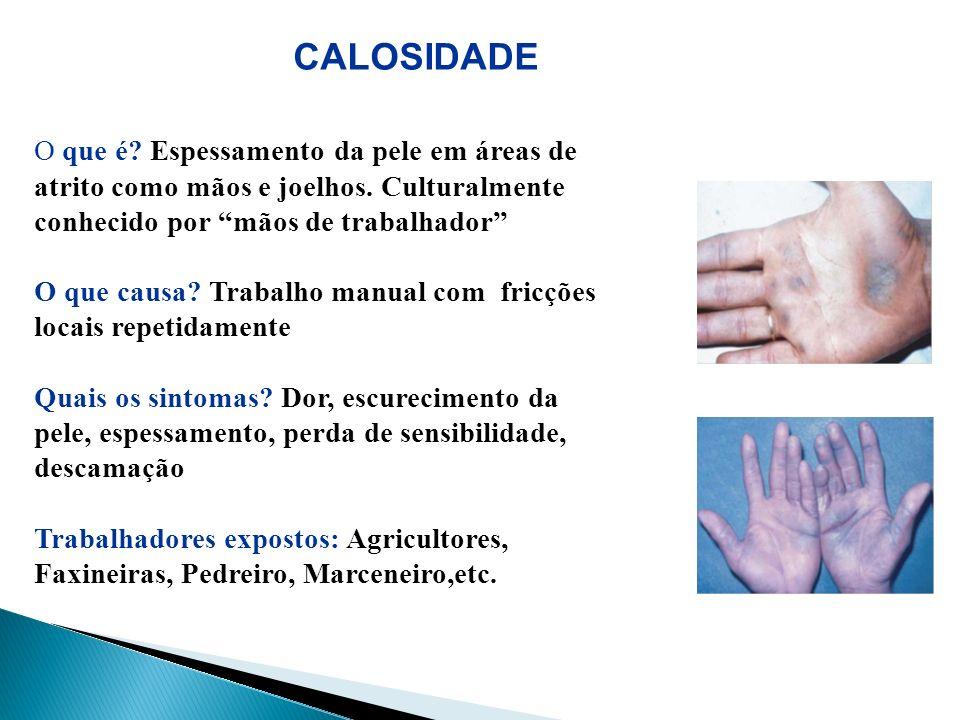 CALOSIDADE O que é? Espessamento da pele em áreas de atrito como mãos e joelhos. Culturalmente conhecido por mãos de trabalhador O que causa? Trabalho
