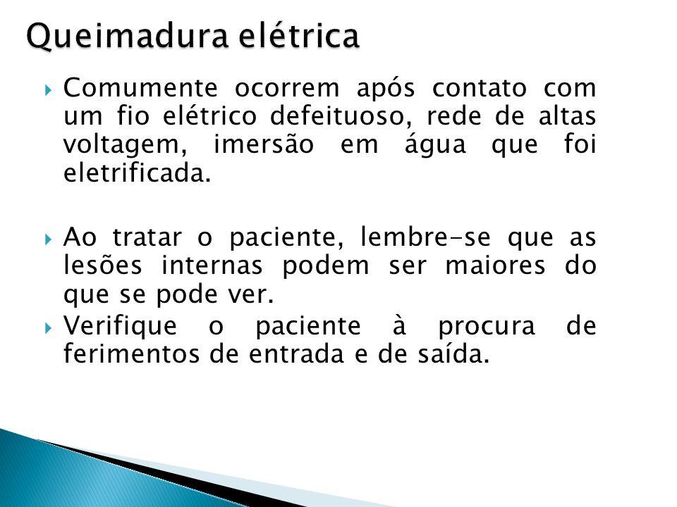 Queimadura elétrica Comumente ocorrem após contato com um fio elétrico defeituoso, rede de altas voltagem, imersão em água que foi eletrificada. Ao tr