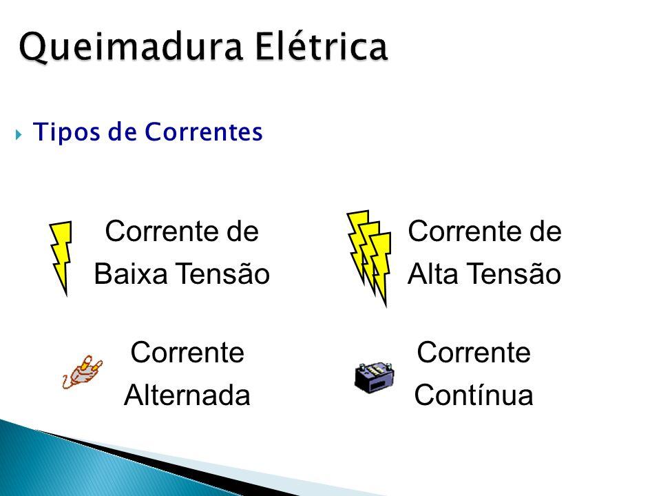 Queimadura Elétrica Tipos de Correntes Corrente de Baixa Tensão Corrente de Alta Tensão Corrente Alternada Corrente Contínua