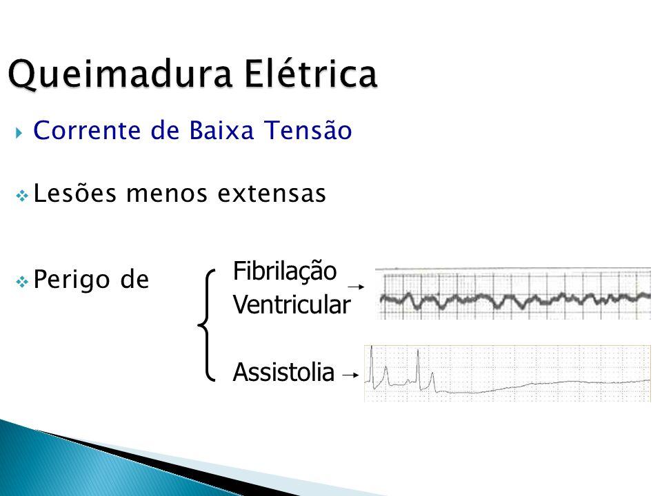 Queimadura Elétrica Corrente de Baixa Tensão Lesões menos extensas Perigo de Fibrilação Ventricular Assistolia