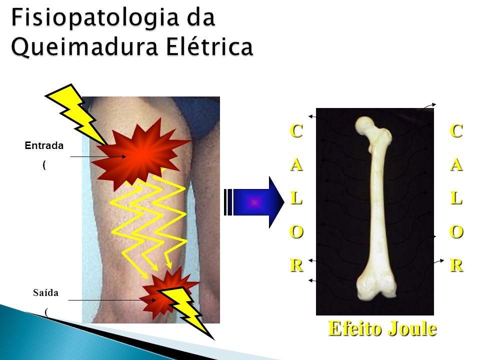 Fisiopatologia da Queimadura Elétrica Entrada ( Saída ( C A L O R C A L O R Efeito Joule