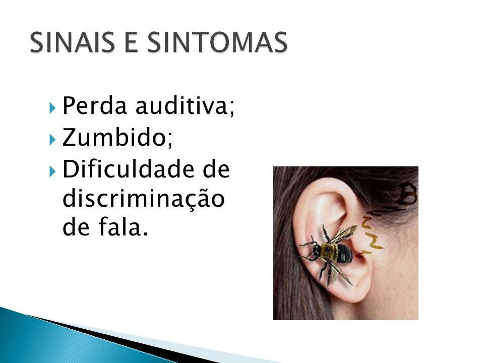 Perda auditiva; Zumbido; Dificuldade de discriminação de fala.