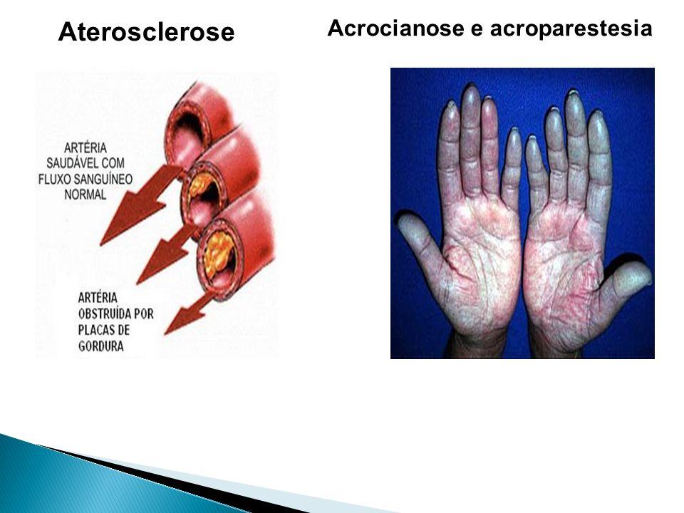 Aterosclerose Acrocianose e acroparestesia