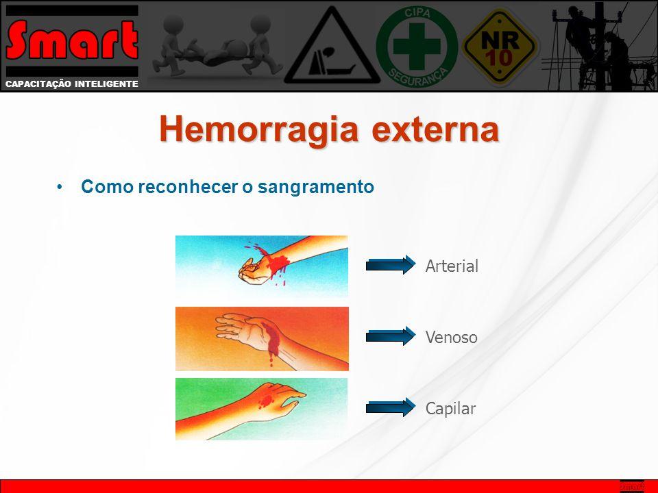 CAPACITAÇÃO INTELIGENTE Hemorragia externa Como reconhecer o sangramento Arterial Venoso Capilar