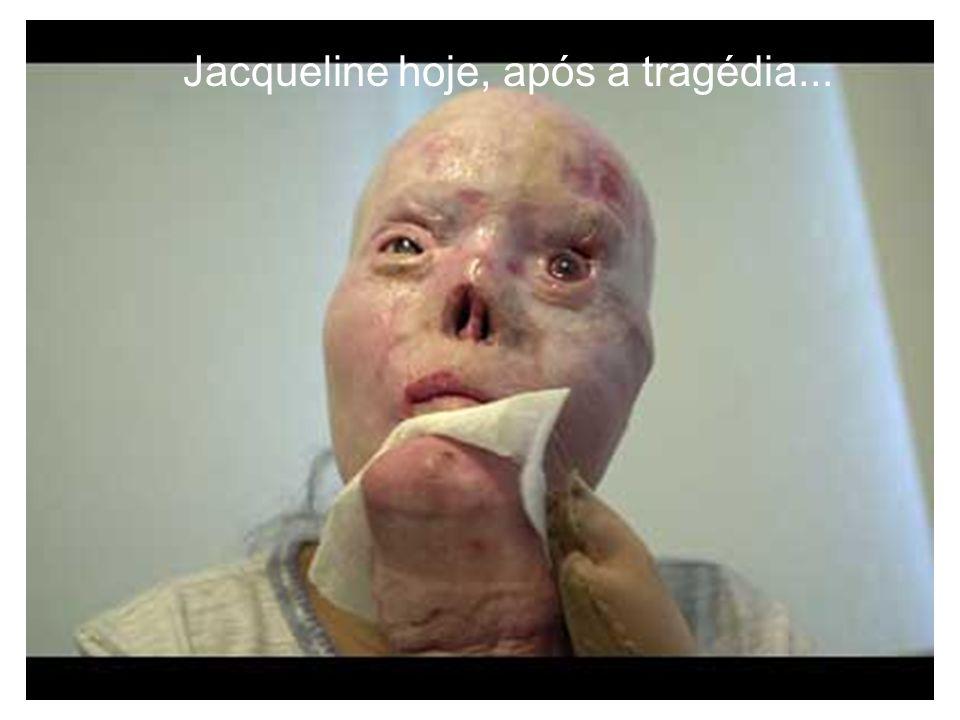 Jacqueline hoje, após a tragédia...