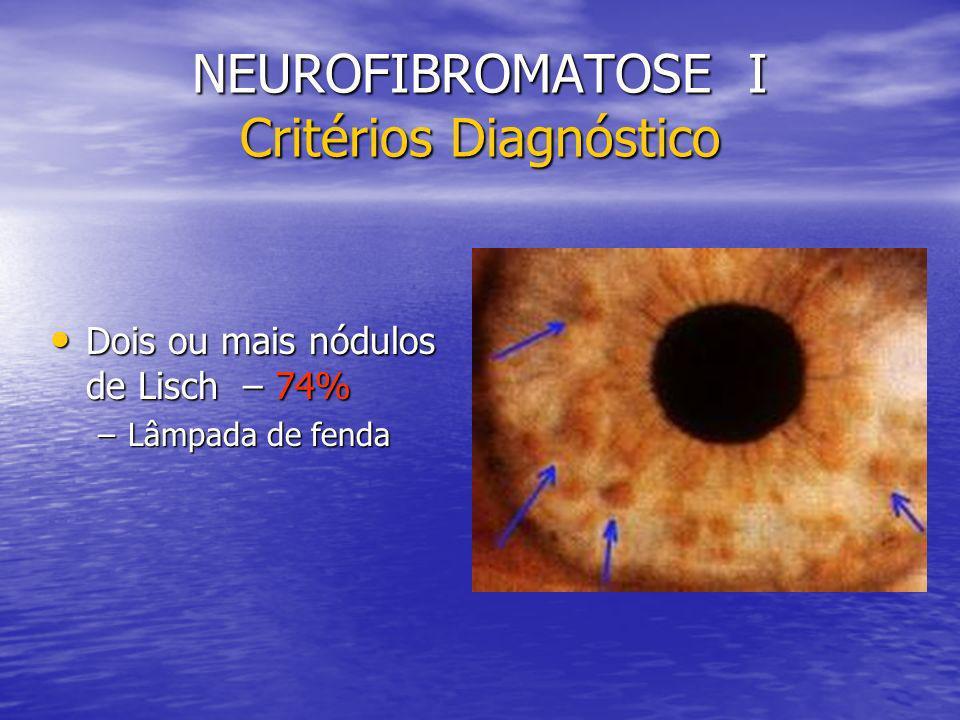 NEUROFIBROMATOSE I Critérios Diagnóstico Dois ou mais nódulos de Lisch – 74% Dois ou mais nódulos de Lisch – 74% –Lâmpada de fenda