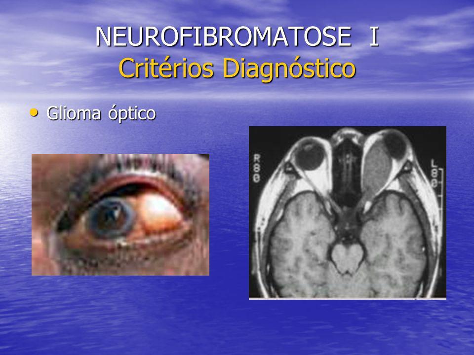 NEUROFIBROMATOSE I Critérios Diagnóstico Glioma óptico Glioma óptico