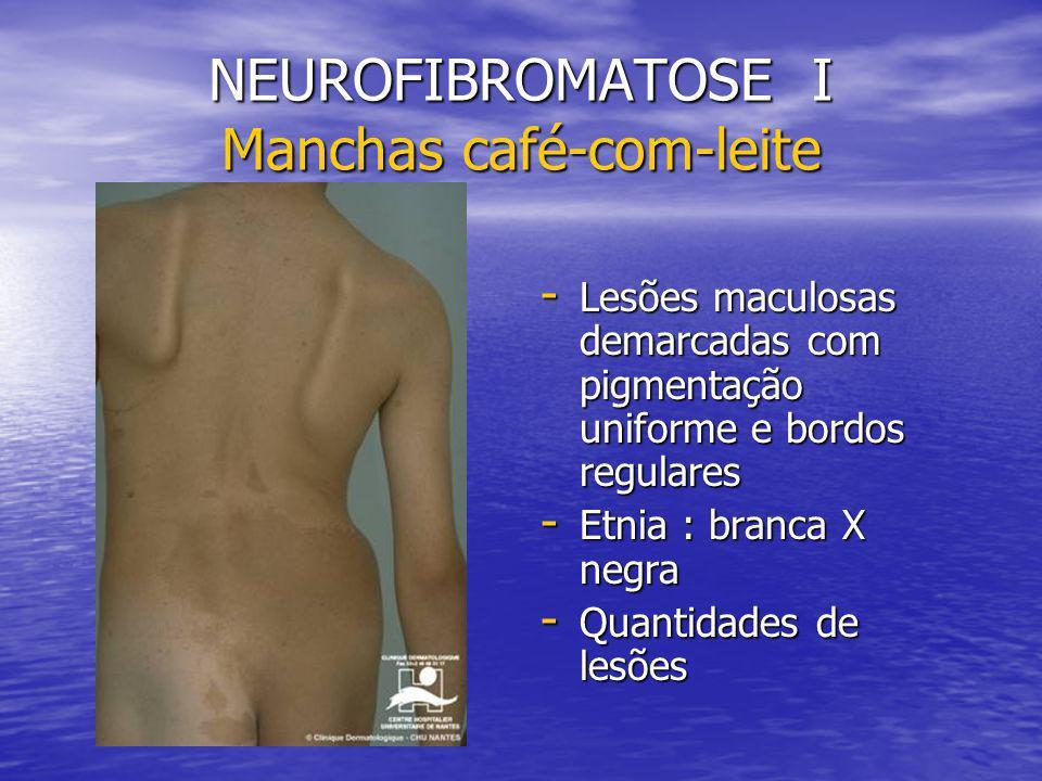 NEUROFIBROMATOSE I Manchas café-com-leite - Lesões maculosas demarcadas com pigmentação uniforme e bordos regulares - Etnia : branca X negra - Quantidades de lesões