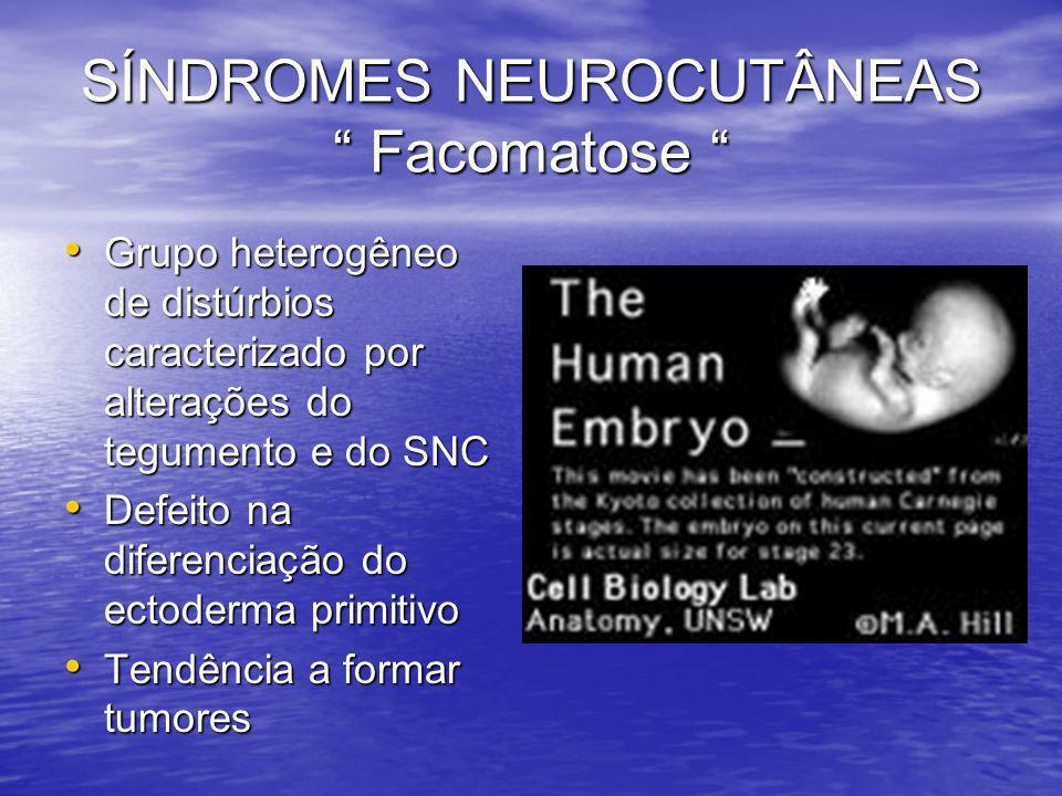 SÍNDROMES NEUROCUTÂNEAS Facomatose SÍNDROMES NEUROCUTÂNEAS Facomatose Grupo heterogêneo de distúrbios caracterizado por alterações do tegumento e do S