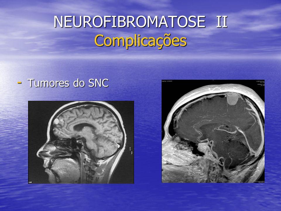 NEUROFIBROMATOSE II Complicações - Tumores do SNC