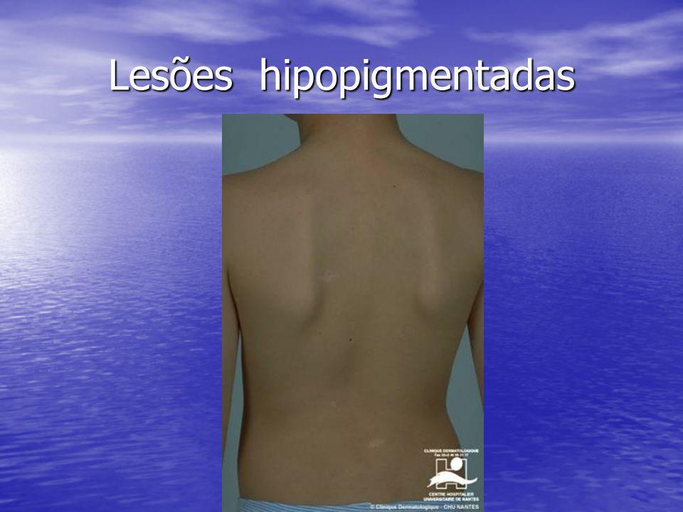 Lesões hipopigmentadas