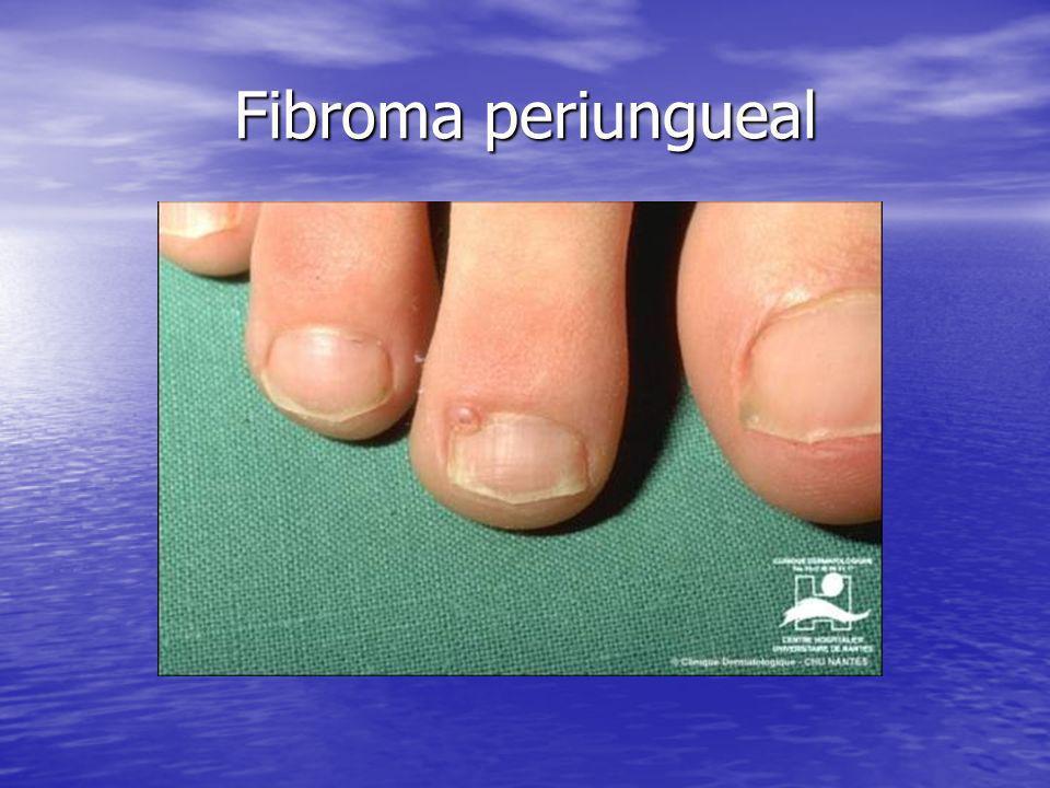 Fibroma periungueal