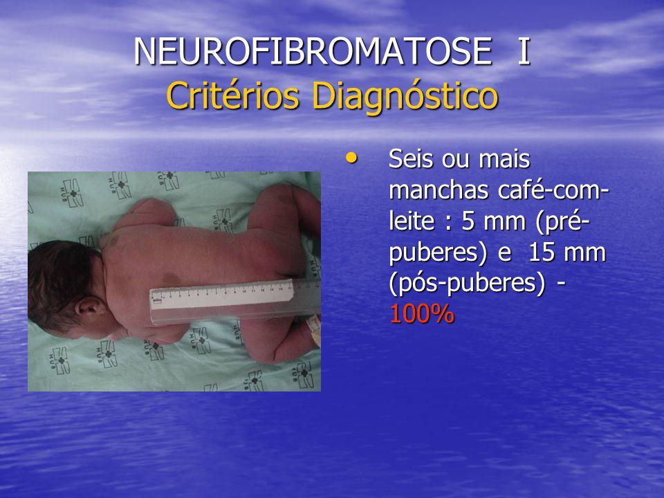 NEUROFIBROMATOSE I Critérios Diagnóstico Seis ou mais manchas café-com- leite : 5 mm (pré- puberes) e 15 mm (pós-puberes) - 100% Seis ou mais manchas