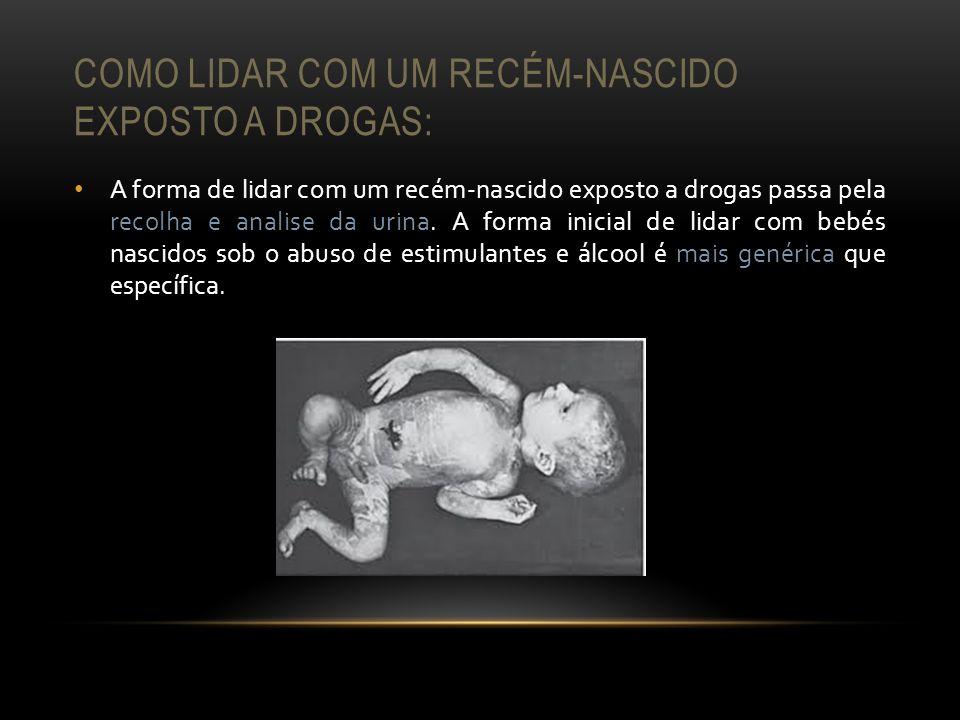 COMO LIDAR COM UM RECÉM-NASCIDO EXPOSTO A DROGAS: A forma de lidar com um recém-nascido exposto a drogas passa pela recolha e analise da urina. A form