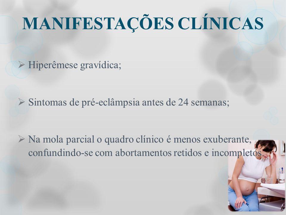 MANIFESTAÇÕES CLÍNICAS Hiperêmese gravídica; Sintomas de pré-eclâmpsia antes de 24 semanas; Na mola parcial o quadro clínico é menos exuberante, confu