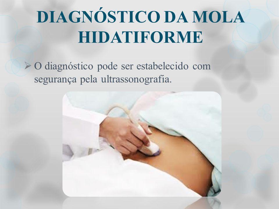 DIAGNÓSTICO DA MOLA HIDATIFORME O diagnóstico pode ser estabelecido com segurança pela ultrassonografia.