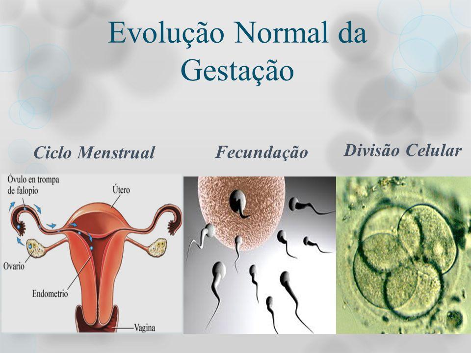 NEOPLASIA TROFOBLÁSTICA GESTACIONAL MALIGNA Coriocarcinoma: tumor trofoblástico com aspecto macroscópico de massa escura, hemorrágico ou necrótica, expansiva e circunscrita, na parede uterina, colo ou vagina.