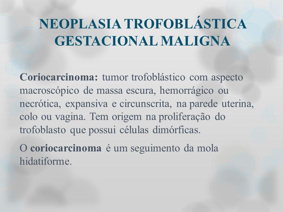NEOPLASIA TROFOBLÁSTICA GESTACIONAL MALIGNA Coriocarcinoma: tumor trofoblástico com aspecto macroscópico de massa escura, hemorrágico ou necrótica, ex