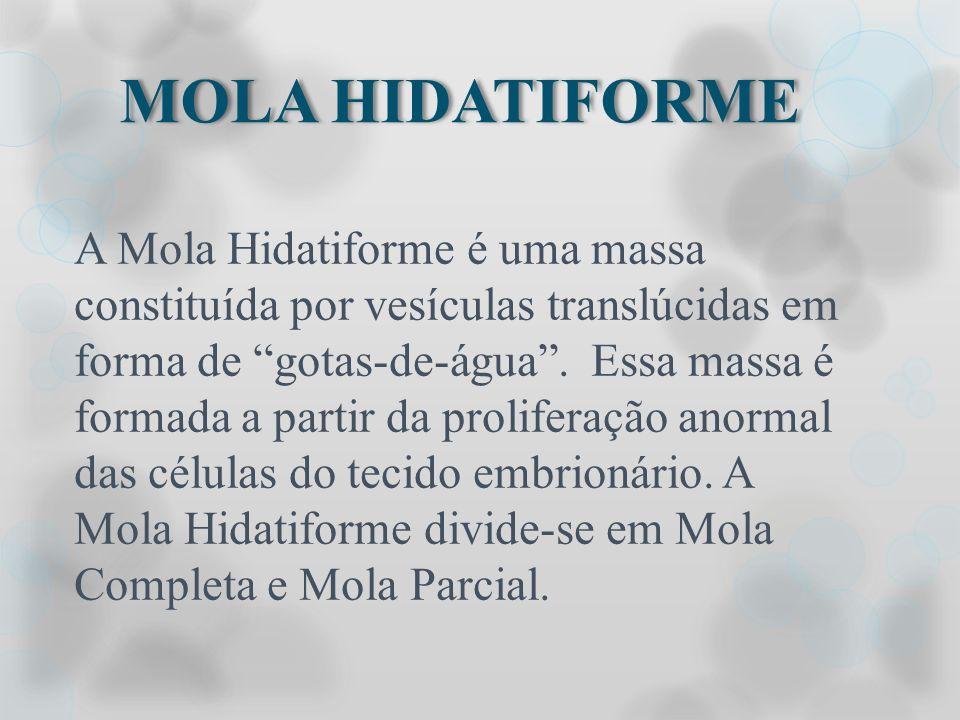 MOLA HIDATIFORME A Mola Hidatiforme é uma massa constituída por vesículas translúcidas em forma de gotas-de-água. Essa massa é formada a partir da pro
