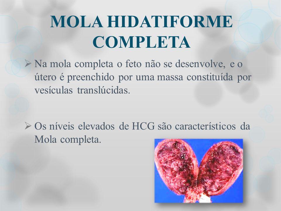 MOLA HIDATIFORME COMPLETA Na mola completa o feto não se desenvolve, e o útero é preenchido por uma massa constituída por vesículas translúcidas. Os n