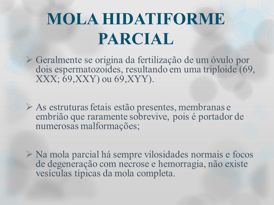 MOLA HIDATIFORME PARCIAL Geralmente se origina da fertilização de um óvulo por dois espermatozoides, resultando em uma triploide (69, XXX; 69,XXY) ou