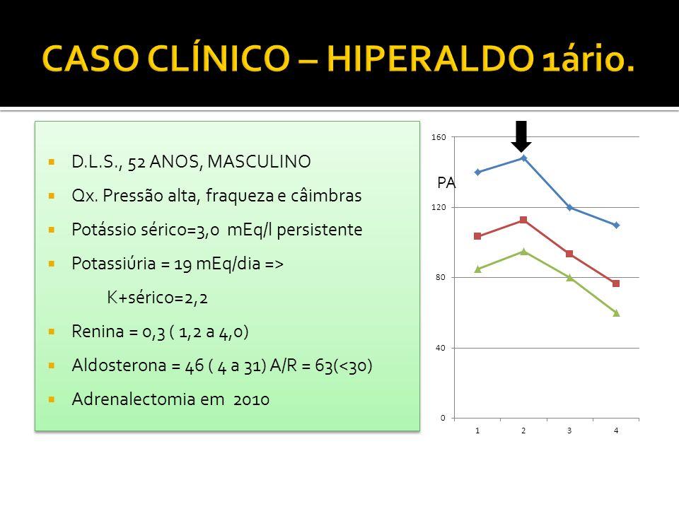 D.L.S., 52 ANOS, MASCULINO Qx. Pressão alta, fraqueza e câimbras Potássio sérico=3,0 mEq/l persistente Potassiúria = 19 mEq/dia => K+sérico=2,2 Renina