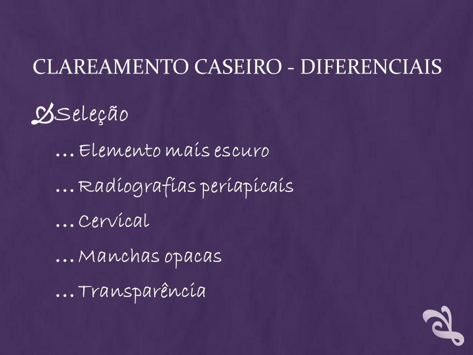 CLAREAMENTO CASEIRO - DIFERENCIAIS Seleção … Elemento mais escuro … Radiografias periapicais … Cervical … Manchas opacas … Transparência