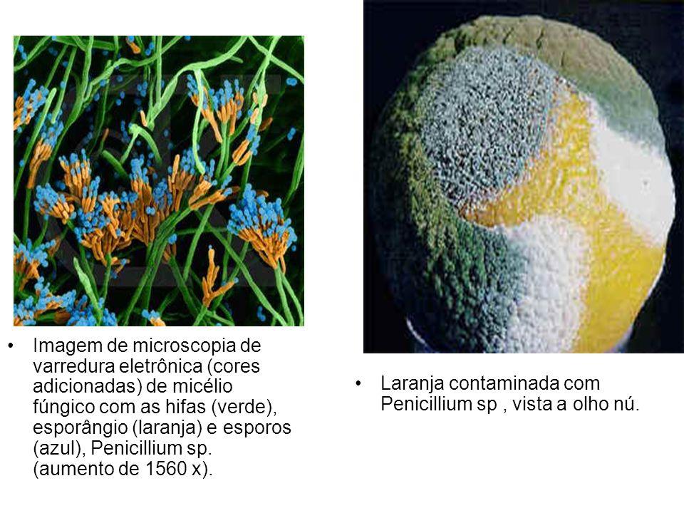 Imagem de microscopia de varredura eletrônica (cores adicionadas) de micélio fúngico com as hifas (verde), esporângio (laranja) e esporos (azul), Peni