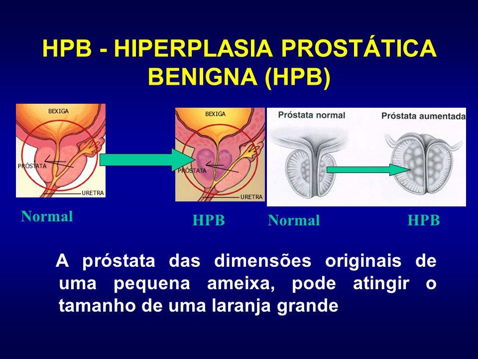 HPB - HIPERPLASIA PROSTÁTICA BENIGNA (HPB) A próstata das dimensões originais de uma pequena ameixa, pode atingir o tamanho de uma laranja grande Norm