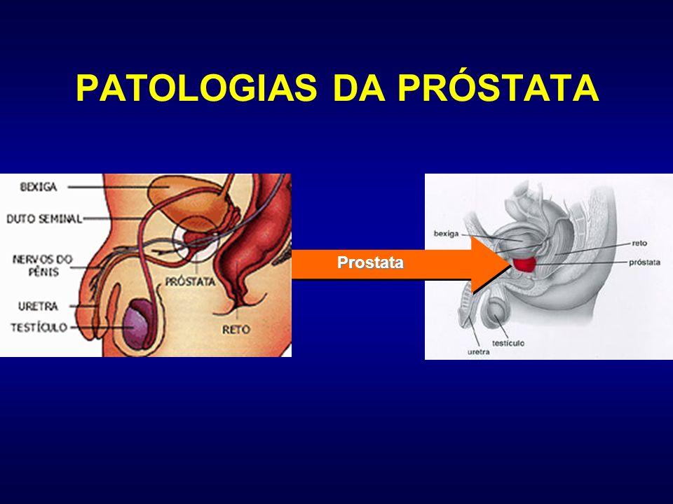 O DIAGNÓSTICO É FEITO Pela presença de sintomas urinários Pelo toque retal Por um exame de sangue (PSA) Por ultra-sonografia da próstata Por biópsia da próstata Por outros exames, dependendo do caso (cintilografia, tomografia computadorizada, ressonância magnética etc)