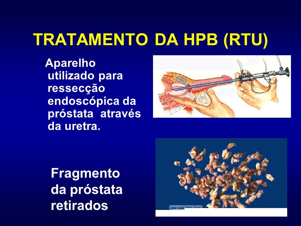 TRATAMENTO DA HPB (RTU) Aparelho utilizado para ressecção endoscópica da próstata através da uretra. Fragmento da próstata retirados.