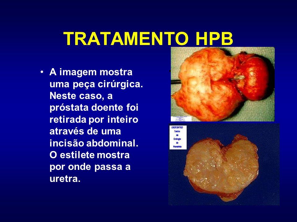 TRATAMENTO HPB A imagem mostra uma peça cirúrgica. Neste caso, a próstata doente foi retirada por inteiro através de uma incisão abdominal. O estilete
