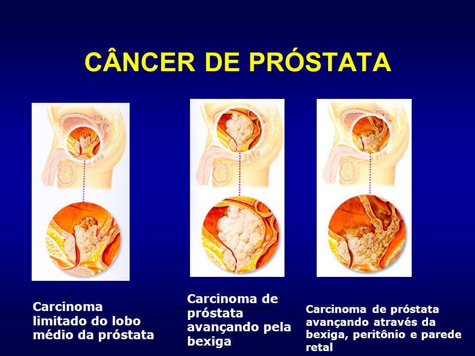 Carcinoma limitado do lobo médio da próstata Carcinoma de próstata avançando pela bexiga Carcinoma de próstata avançando através da bexiga, peritônio