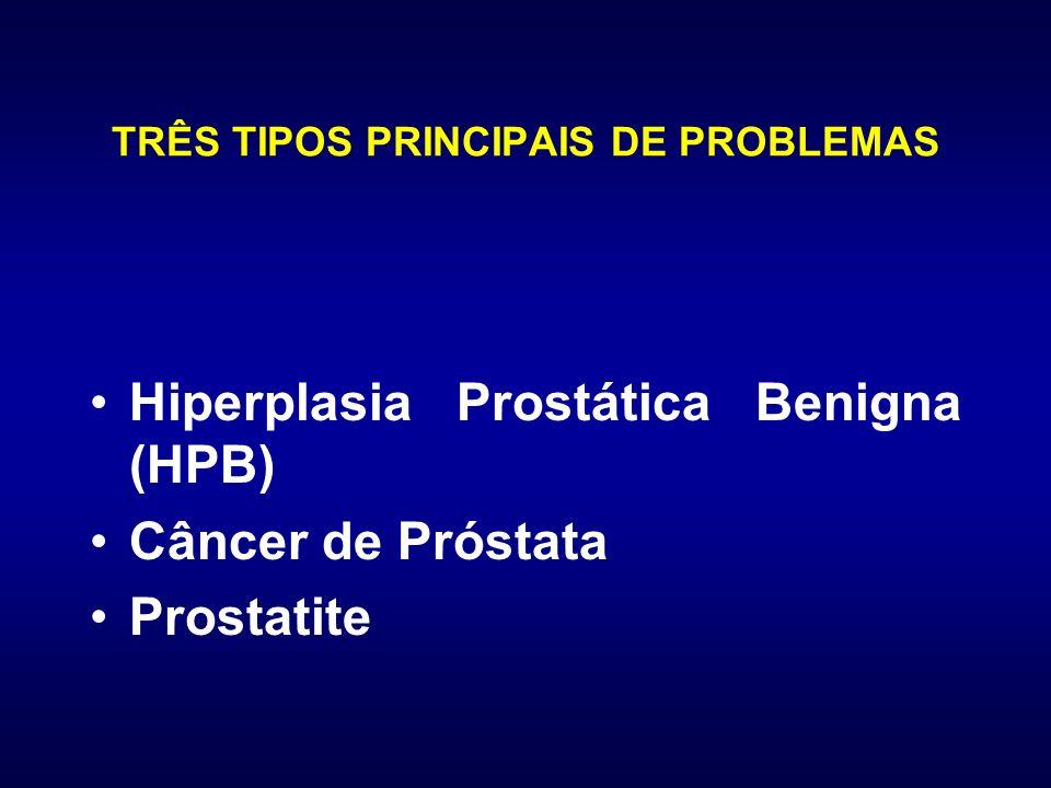 TRÊS TIPOS PRINCIPAIS DE PROBLEMAS Hiperplasia Prostática Benigna (HPB) Câncer de Próstata Prostatite