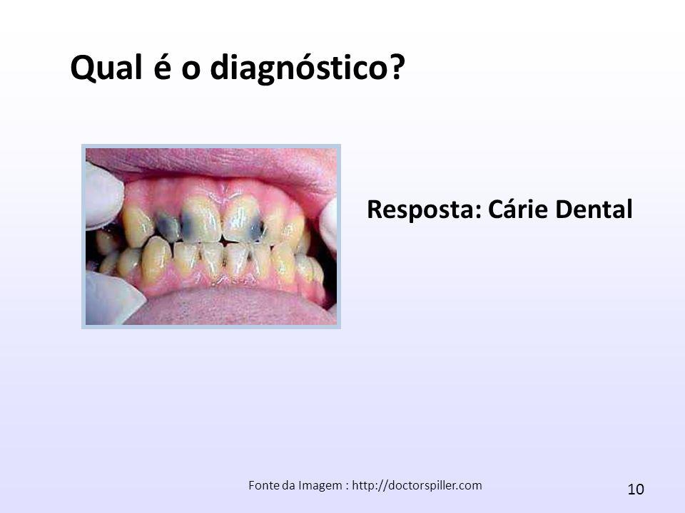 10 Fonte da Imagem : http://doctorspiller.com Qual é o diagnóstico? Resposta: Cárie Dental