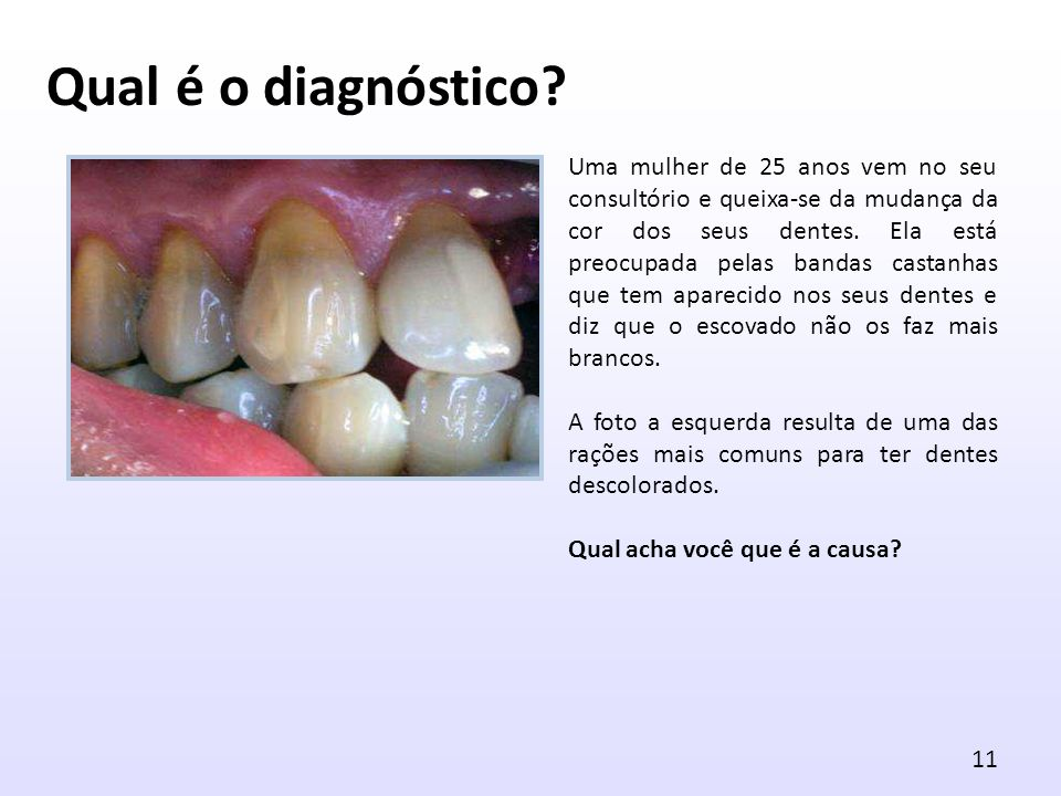 Uma mulher de 25 anos vem no seu consultório e queixa-se da mudança da cor dos seus dentes. Ela está preocupada pelas bandas castanhas que tem apareci