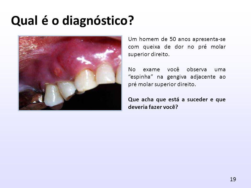 Um homem de 50 anos apresenta-se com queixa de dor no pré molar superior direito. No exame você observa uma espinha na gengiva adjacente ao pré molar