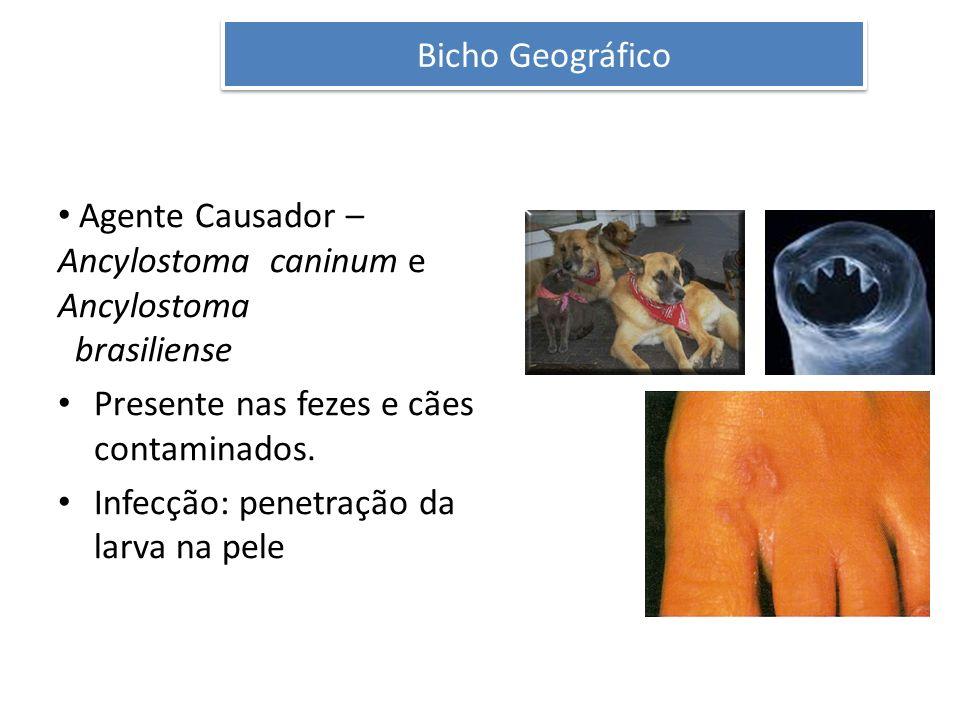Bicho Geográfico Agente Causador – Ancylostoma caninum e Ancylostoma brasiliense Presente nas fezes e cães contaminados. Infecção: penetração da larva