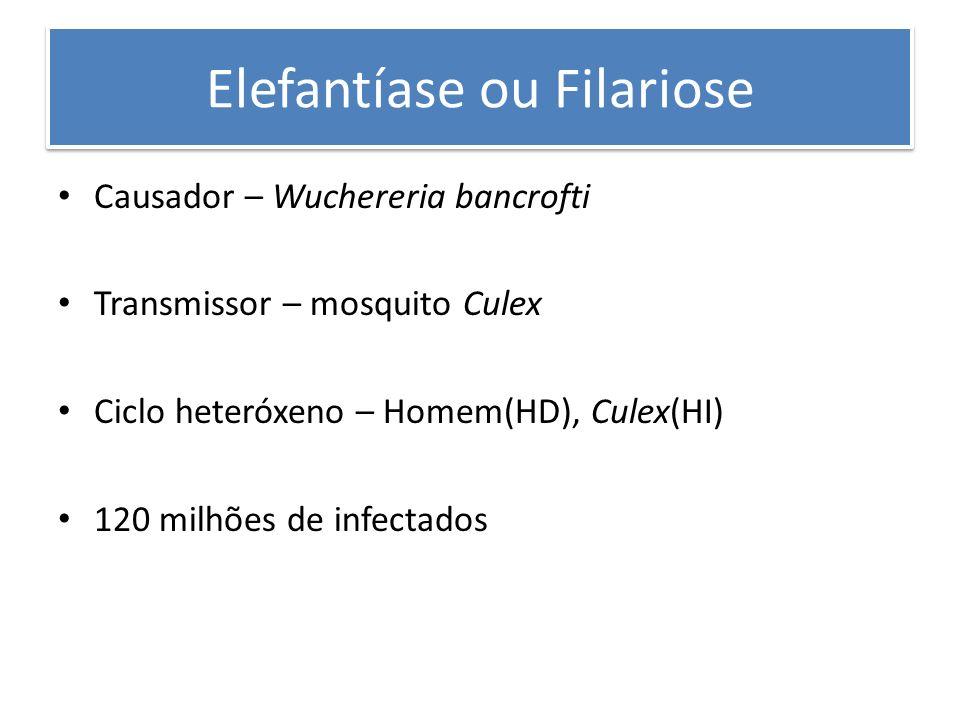 Elefantíase ou Filariose Causador – Wuchereria bancrofti Transmissor – mosquito Culex Ciclo heteróxeno – Homem(HD), Culex(HI) 120 milhões de infectado