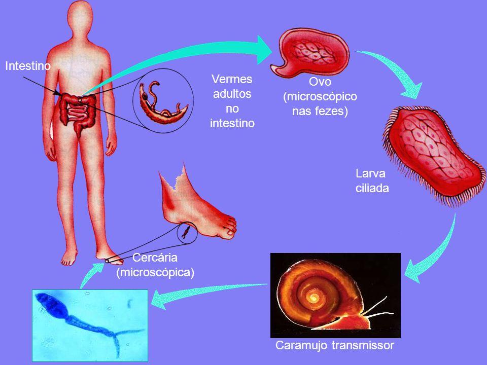 Intestino Vermes adultos no intestino Ovo (microscópico nas fezes) Larva ciliada Caramujo transmissor Cercária (microscópica)